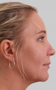 Exilis face / neck non-invasive liposuction & skin tightening after photo