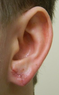 Gauged Earlobe photo after Plastic Surgery Repair 1