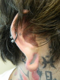 Gauged Earlobe before Plastic Surgery Repair photo 1-2