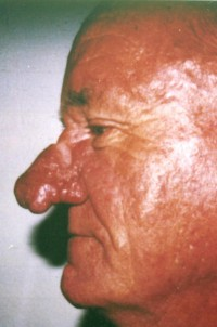 Rhinophyma Correction before 1-2
