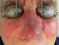 Rosacea immediately after IPL / Laser photo
