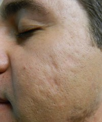 Acne Scars before Fillers photo 1-2