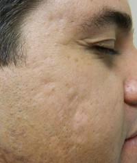 Acne Scars before Fillers photo 1-1