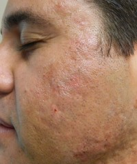 Acne Scars after Fillers photo 1-2