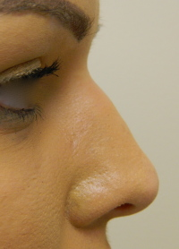 Non-Surgical Rhinoplasty Pre-Injection Photo1