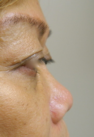 Non-Surgical Rhinoplasty Pre-Injection Photo2