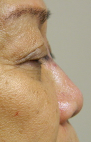 Non-Surgical Rhinoplasty After-Injection Photo2