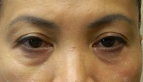 No Surgery Eyelift with Restylane before photo