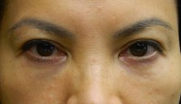 No Surgery Eyelift with Restylane after photo