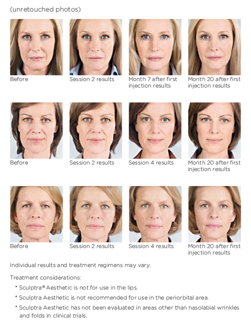 Sculptra in Las Vegas before & after photos