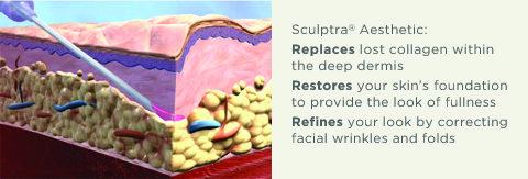 How Sculptra Works