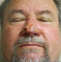 Rhinophyma 1 week after Plastic Surgery